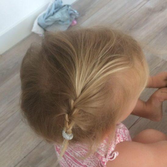Haarvlechten zenner antiklit derma care
