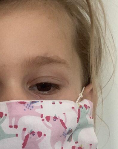 litteken oog kind